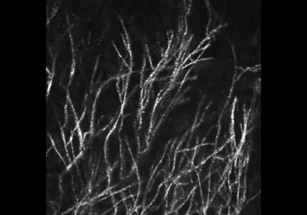 image of how fungal filaments appear on confocal microscopy. Jaya Chidabaram