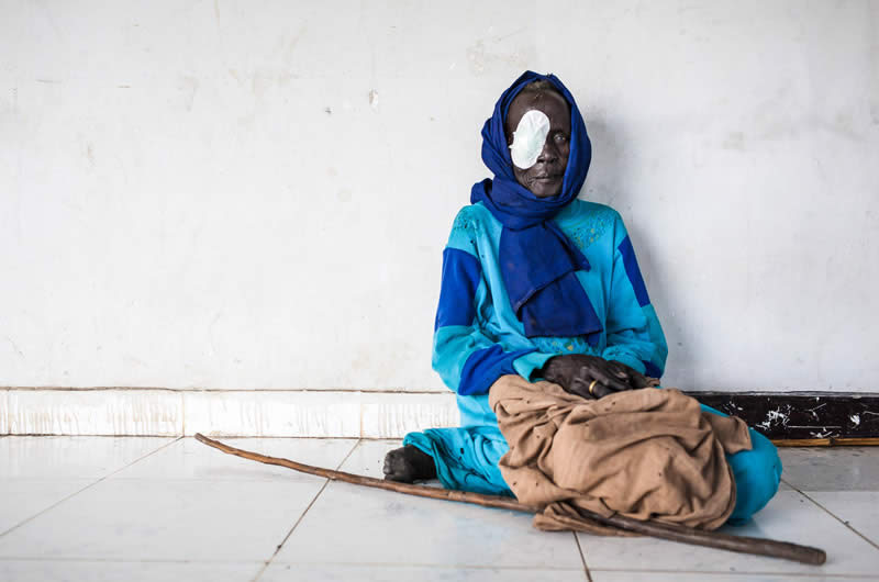 A woman rests in the hallway after her cataract operation, conducted at a clinic in South Sudan as part of an outreach programme
