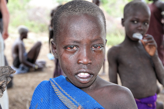 Child with conjunctivitis. Although not sight threatening, in the absence of eye care services, communities may resort to harmful traditional eye remedies